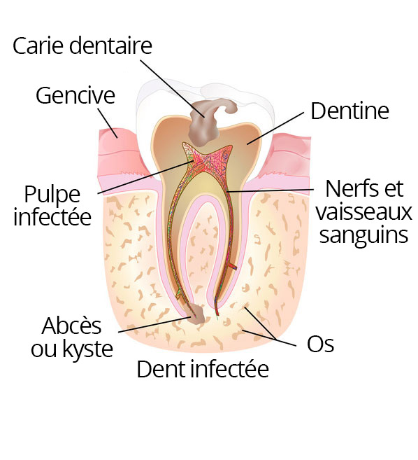 root_canal_01_fr