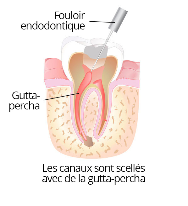 root_canal_04_fr