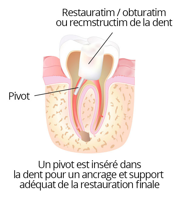 root_canal_05_fr