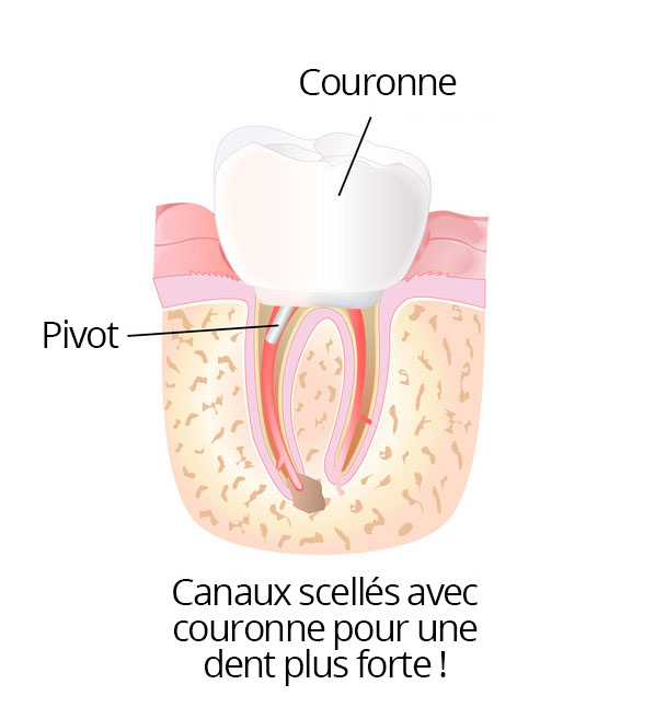 root_canal_06_fr
